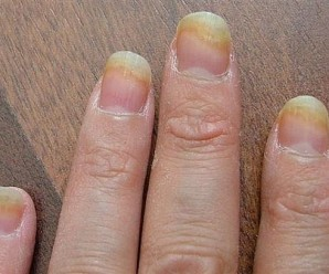 Nail Care: Treat & Prevent Yellow Nails