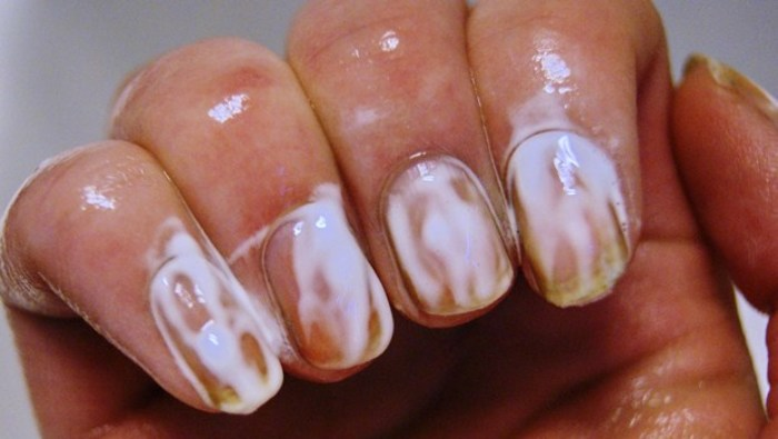 Treatment & Prevention Gold Nail