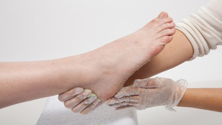 Skincare cracked heels