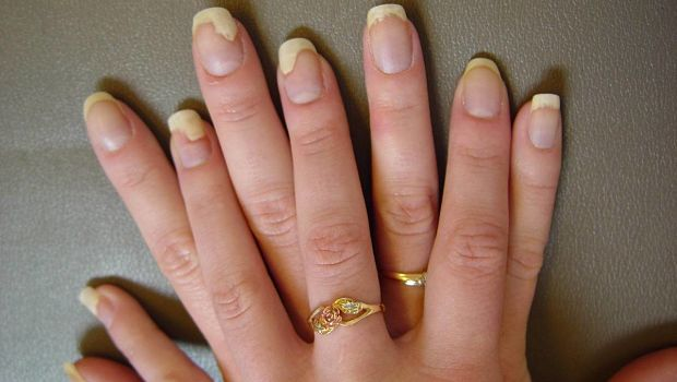 The Facts You Need To Know About Nail Fungus