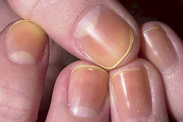 What Should And Should Not Do When Nail Care