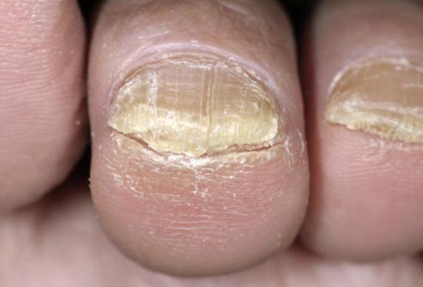 Thick Nails – Causes & Treatment