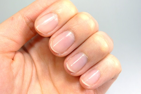 The Great Hope For Those Who Suffer From Brittle Nails
