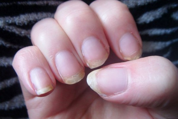 The Treatment And Care Of Nails Were Peeling