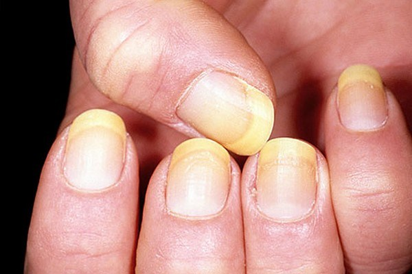 Nail Care Stain: Causes And Treatments