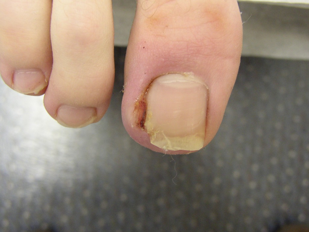 Toenail Care: Ingrown Nails