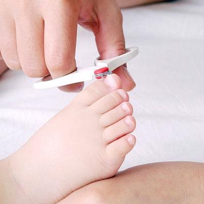 Toenail Care: Ingrown Nails
