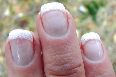 The Cause And How To Take Care Of Cracked Nails