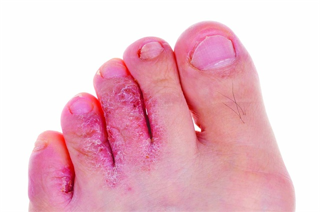Diseases Of The Nails: Nail Atrophy Syndrome