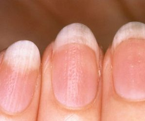 How to diagnose the disease through the nail